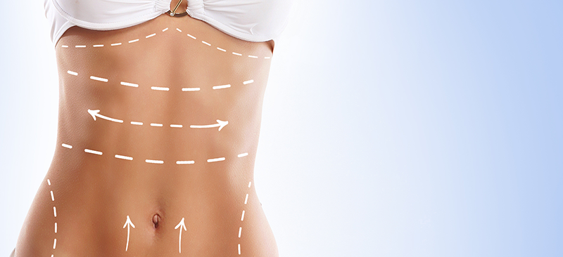 Liposuction Prices: 10 Factors That Affect how much it Costs?