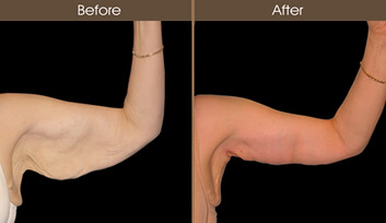 arm lift surgery before and after