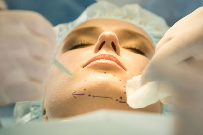 female chin implants sydney