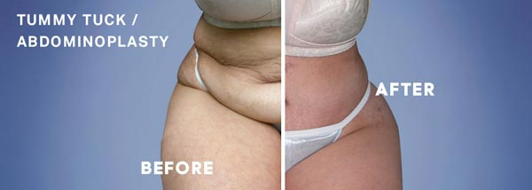 tummy tuck sydney nsw