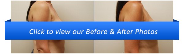 breast implant before and after gallery sydney